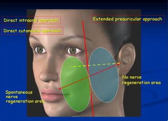 Management of midcheek masses and tumors of the accessory