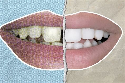 Teeth Whitening at Home: How to Get Your Teeth Hollywood
