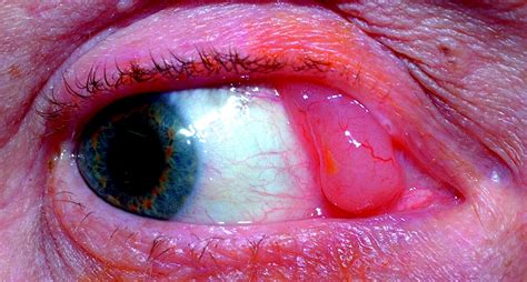 Isolated conjunctival lymphoma metastasis from previous