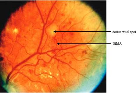 Diabetic Retinopathy Screening Services in Scotland: A