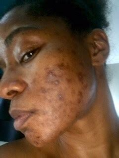 Before and After Chemical Peel Photos