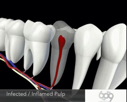 Root canal animation : educationalgifs