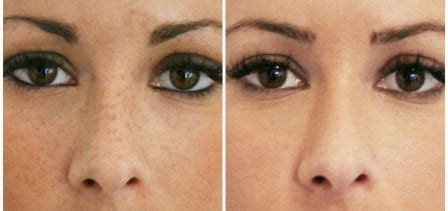 Laser Freckle Removal Before and After picture   Laser