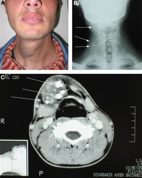 Hemangiomas of the head and neck with phleboliths